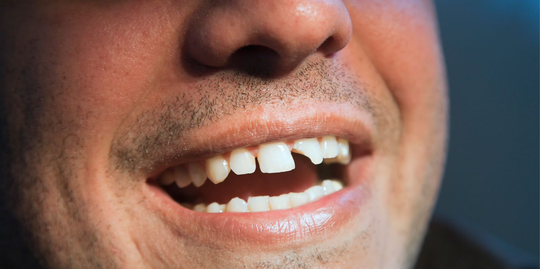 Как расшатать коренной зуб в домашних условиях